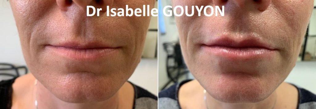 Acide hyaluronique bouche